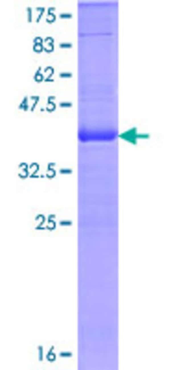 Abnova Human ITGAE Partial ORF (NP_002199, 57 a.a. - 171 a.a.) Recombinant