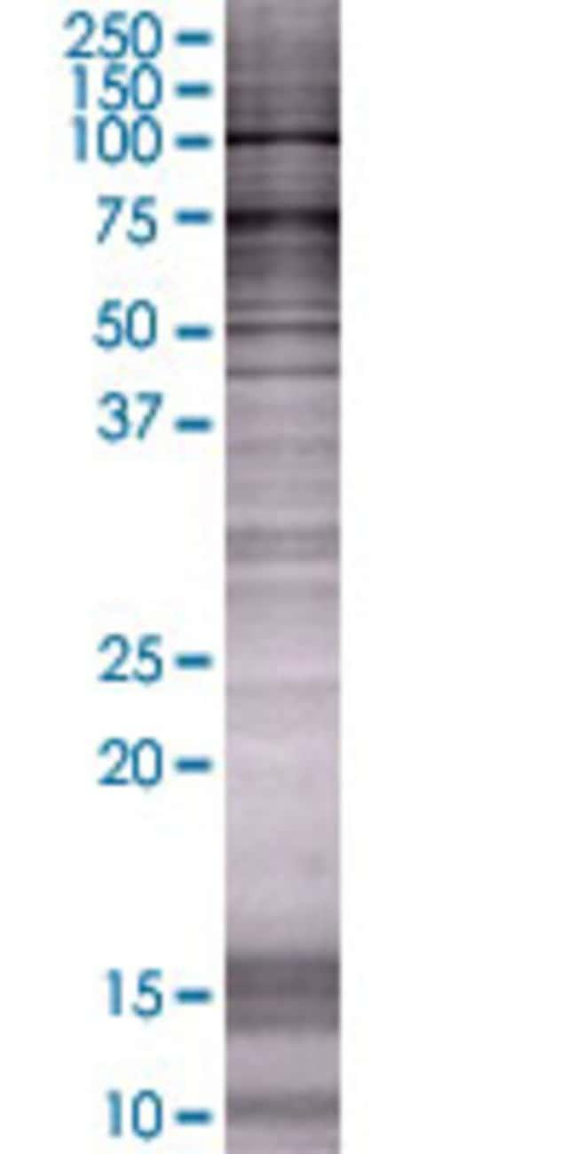 Abnova ITGB2 293T Cell Transient Overexpression Lysate (Denatured) 100µL:Life