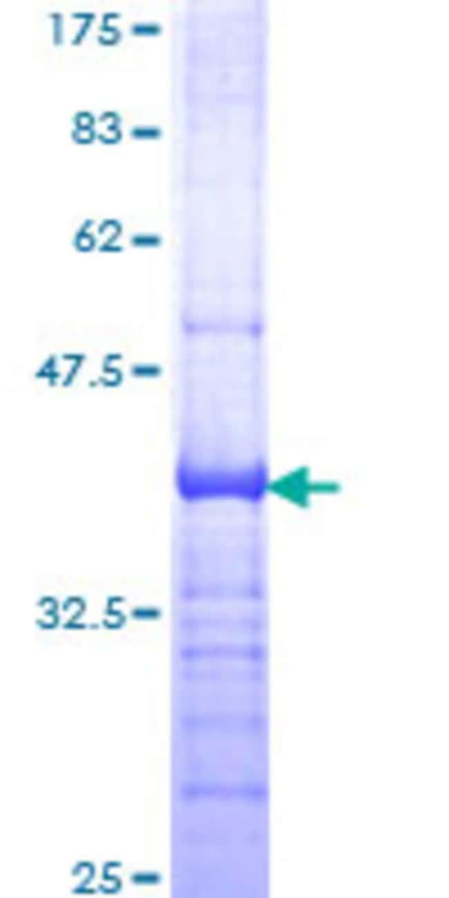 Abnova Human ITGB4 Partial ORF (NP_000204, 28 a.a. - 137 a.a.) Recombinant