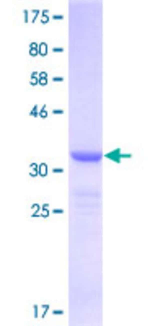 Abnova Human ITGB4BP Partial ORF (NP_002203, 146 a.a. - 245 a.a.) Recombinant