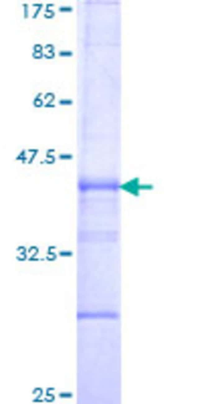 Abnova™Human ITGB6 Partial ORF (NM_000888, 604 a.a. - 707 a.a.) Recombinant Protein with GST-tag at N-terminal 10μg Abnova™Human ITGB6 Partial ORF (NM_000888, 604 a.a. - 707 a.a.) Recombinant Protein with GST-tag at N-terminal