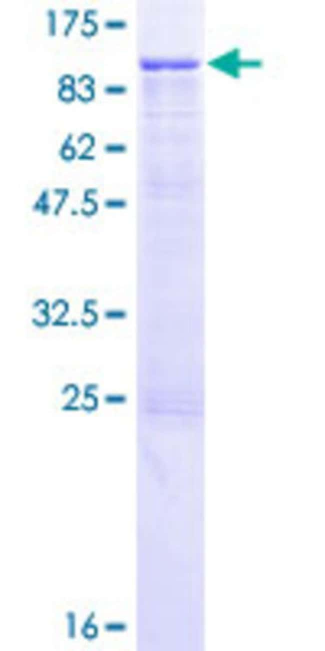 Abnova™ Human ITGB7 Full-length ORF (NP_000880.1, 1 a.a. - 798 a.a.) Recombinant Protein with GST-tag at N-terminal 10μg Abnova™ Human ITGB7 Full-length ORF (NP_000880.1, 1 a.a. - 798 a.a.) Recombinant Protein with GST-tag at N-terminal