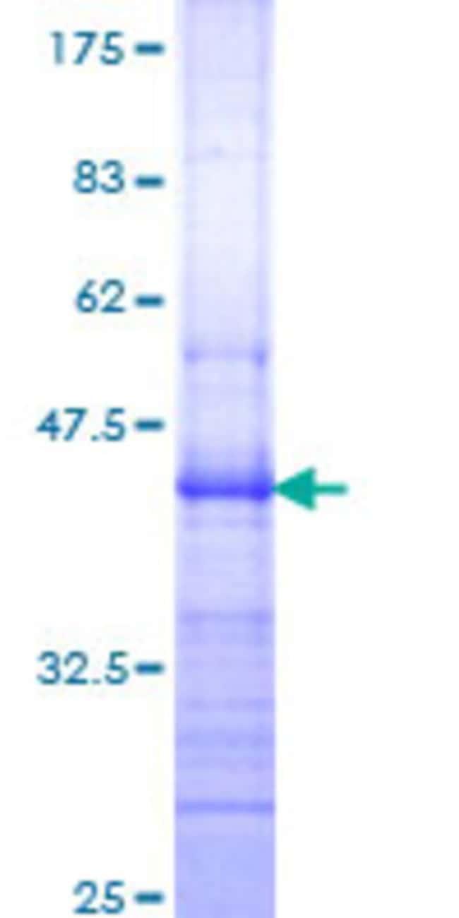 Abnova Human ITGB7 Partial ORF (NP_000880, 401 a.a. - 505 a.a.) Recombinant