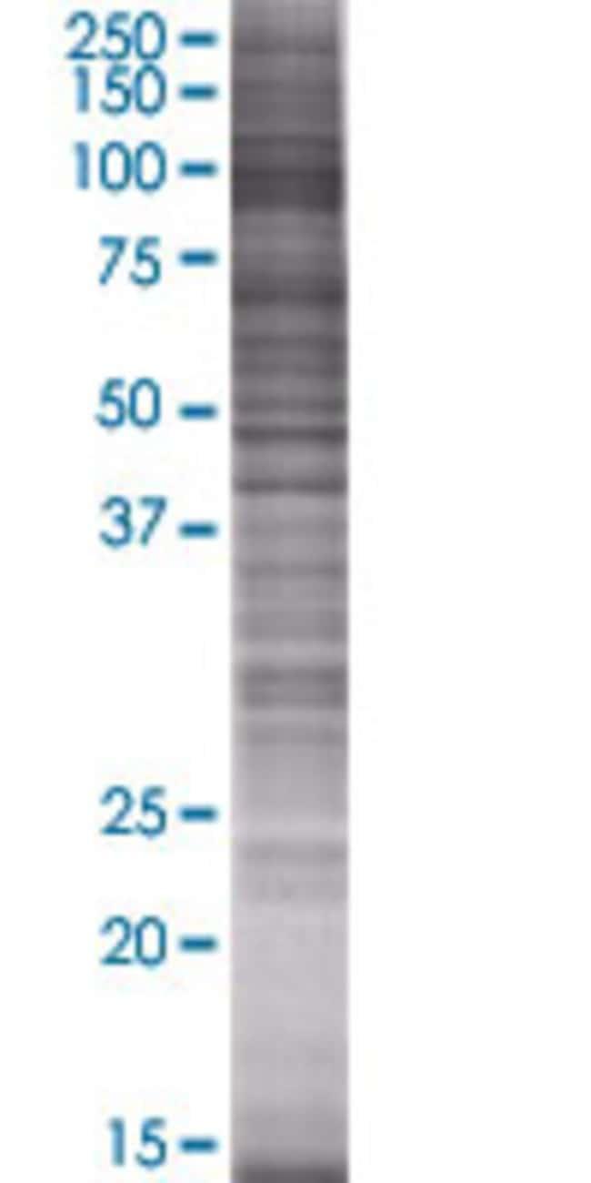 Abnova ITIH1 293T Cell Transient Overexpression Lysate (Denatured) 100µL:Life