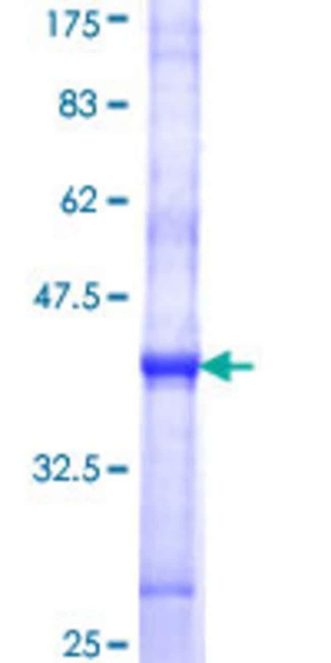 Abnova Human ITM1 Partial ORF (NP_689926, 603 a.a. - 701 a.a.) Recombinant