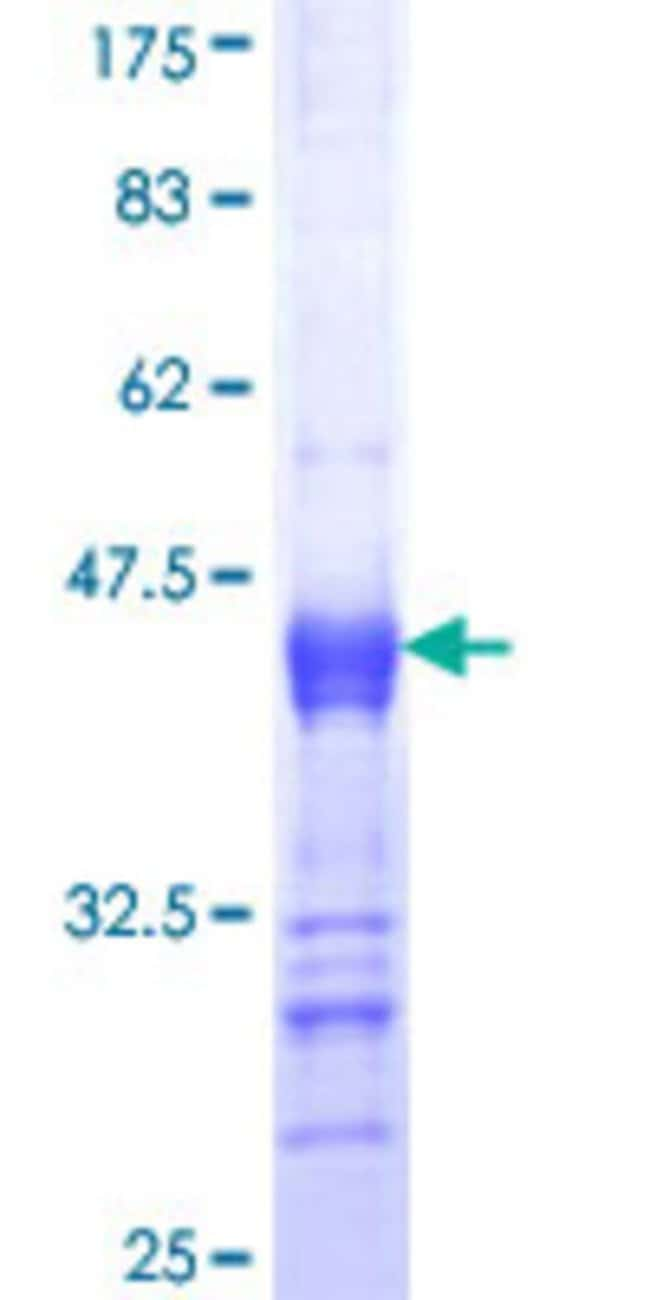 Abnova™Human ITPKB Partial ORF (NP_002212, 545 a.a. - 643 a.a.) Recombinant Protein with GST-tag at N-terminal 25μg Abnova™Human ITPKB Partial ORF (NP_002212, 545 a.a. - 643 a.a.) Recombinant Protein with GST-tag at N-terminal