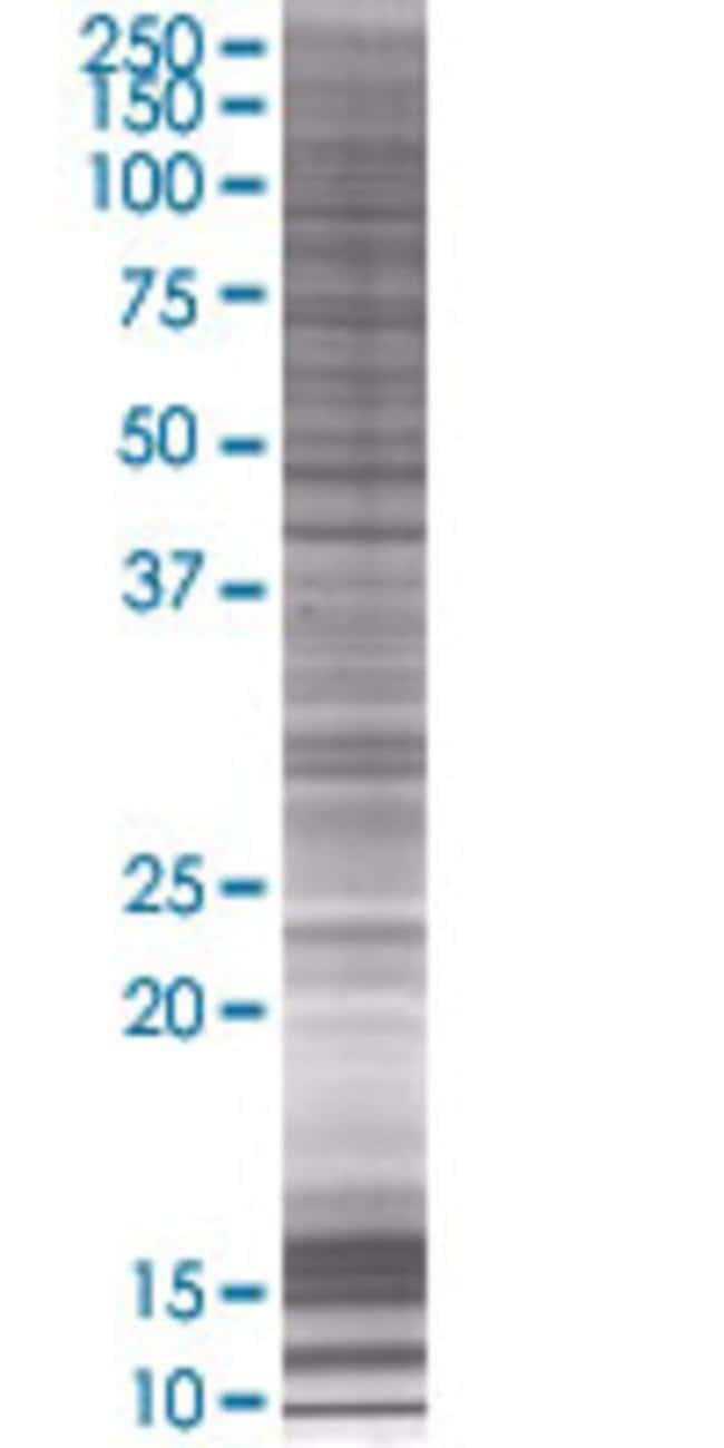 Abnova ITPKB 293T Cell Transient Overexpression Lysate (Denatured) 100µL:Life