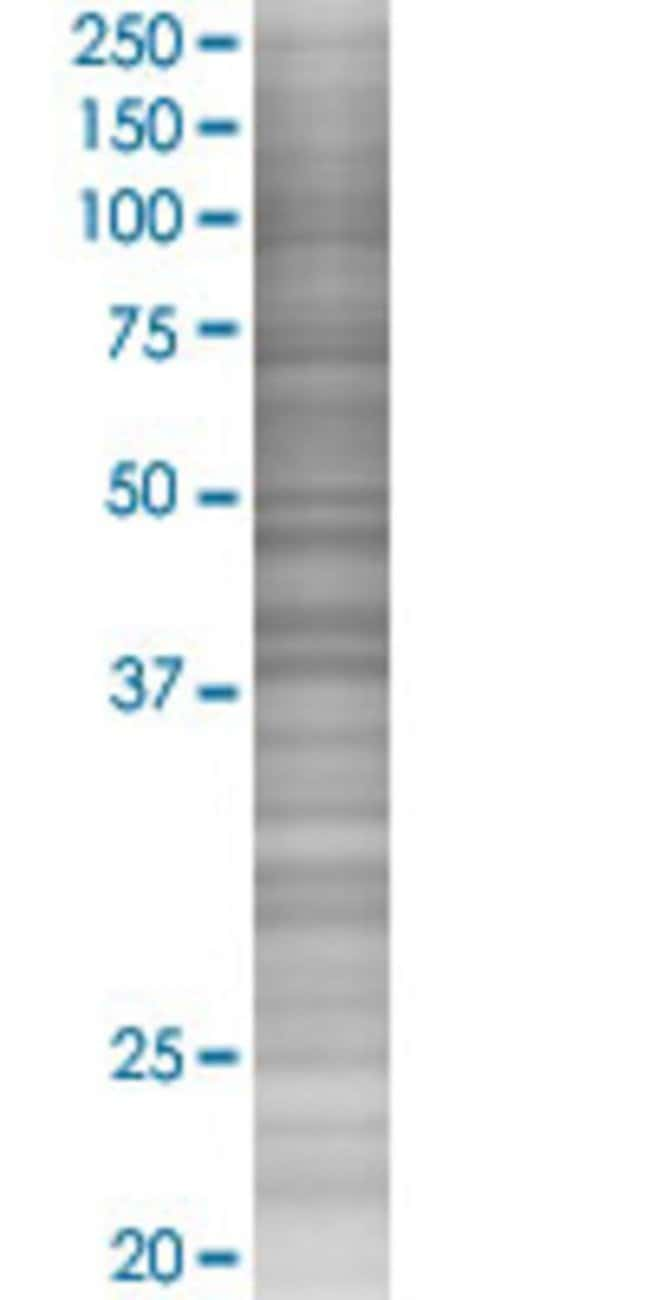 Abnova IVD 293T Cell Transient Overexpression Lysate (Denatured) (T02)