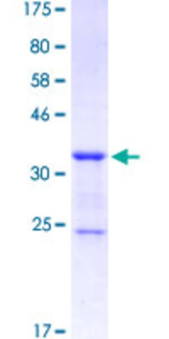 Abnova™Human JAG2 Partial ORF (NP_002217.3, 869 a.a. - 966 a.a.) Recombinant Protein with GST-tag at N-terminal 10μg Abnova™Human JAG2 Partial ORF (NP_002217.3, 869 a.a. - 966 a.a.) Recombinant Protein with GST-tag at N-terminal