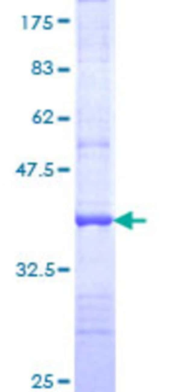 Abnova™Human JAK1 Partial ORF (NP_002218, 221 a.a. - 320 a.a.) Recombinant Protein with GST-tag at N-terminal 10μg Abnova™Human JAK1 Partial ORF (NP_002218, 221 a.a. - 320 a.a.) Recombinant Protein with GST-tag at N-terminal