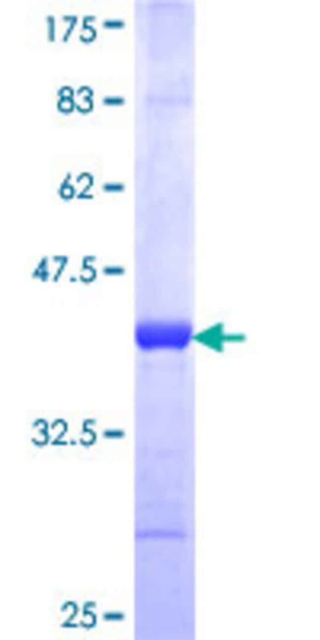 Abnova Human JARID2 Partial ORF (NP_004964, 1130 a.a. - 1229 a.a.) Recombinant