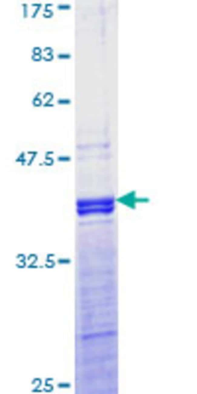 Abnova Human JUND Partial ORF (NP_005345, 258 a.a. - 347 a.a.) Recombinant