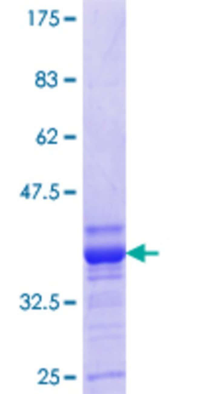 Abnova Human KCNA1 Partial ORF (NP_000208.1, 410 a.a. - 495 a.a.) Recombinant