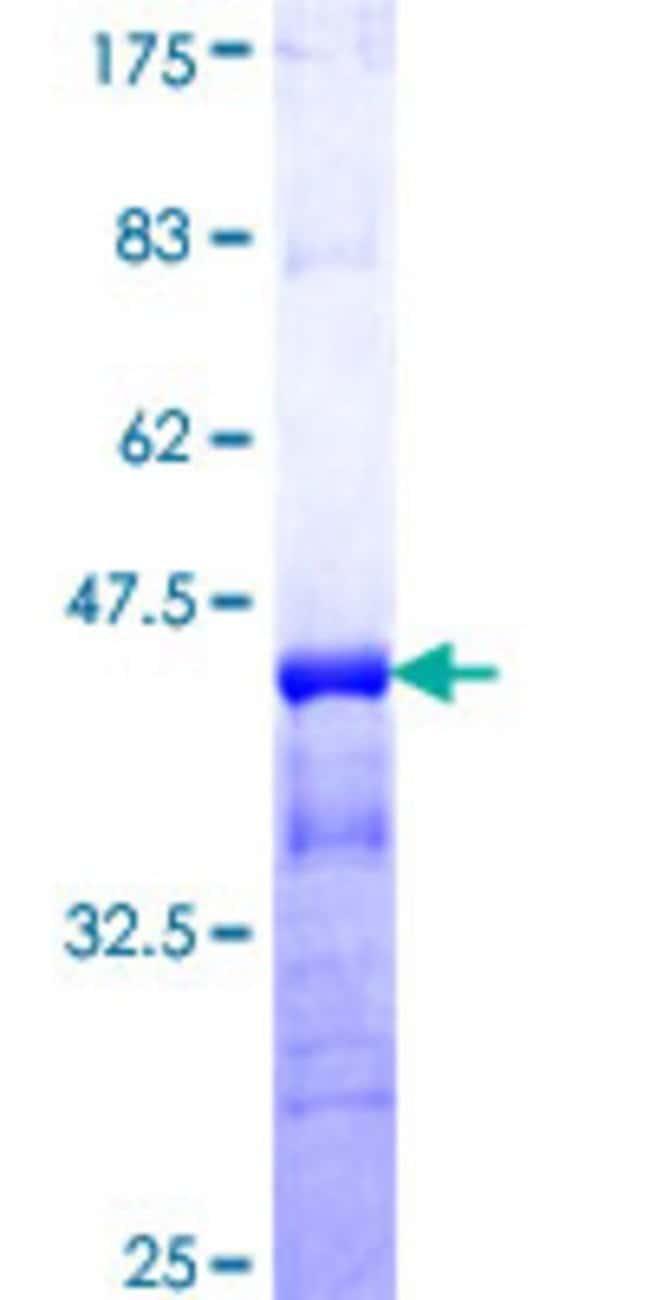 Abnova Human KCNC3 Partial ORF (NP_004968, 671 a.a. - 757 a.a.) Recombinant