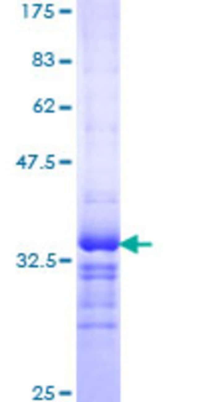 Abnova Human KCNE1 Partial ORF (NP_000210, 67 a.a. - 129 a.a.) Recombinant