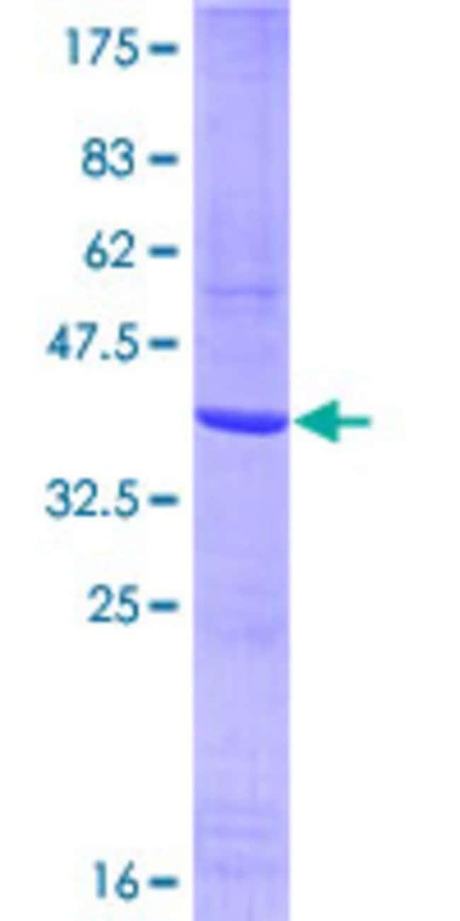Abnova Human KDR Partial ORF (NP_002244, 31 a.a. - 130 a.a.) Recombinant