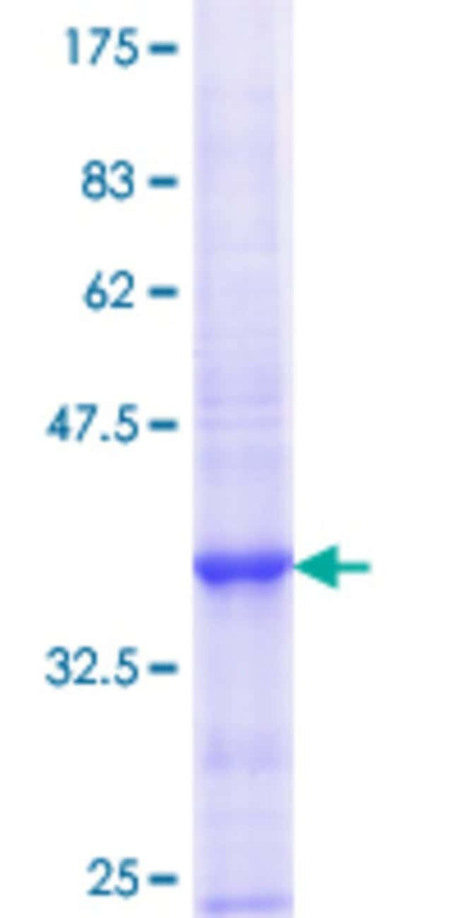 Abnova™Human KEL Partial ORF (NP_000411.1, 633 a.a. - 732 a.a.) Recombinant Protein with GST-tag at N-terminal 10μg Abnova™Human KEL Partial ORF (NP_000411.1, 633 a.a. - 732 a.a.) Recombinant Protein with GST-tag at N-terminal