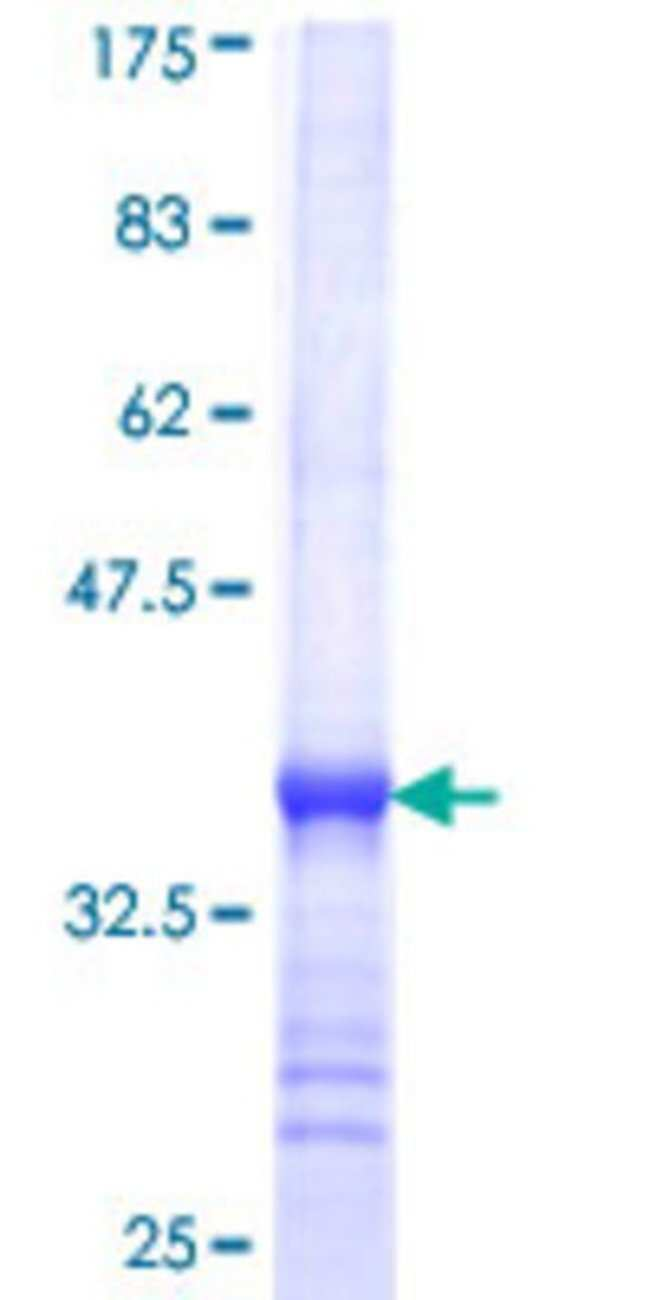 Abnova Human KHK Partial ORF (NP_000212, 201 a.a. - 297 a.a.) Recombinant