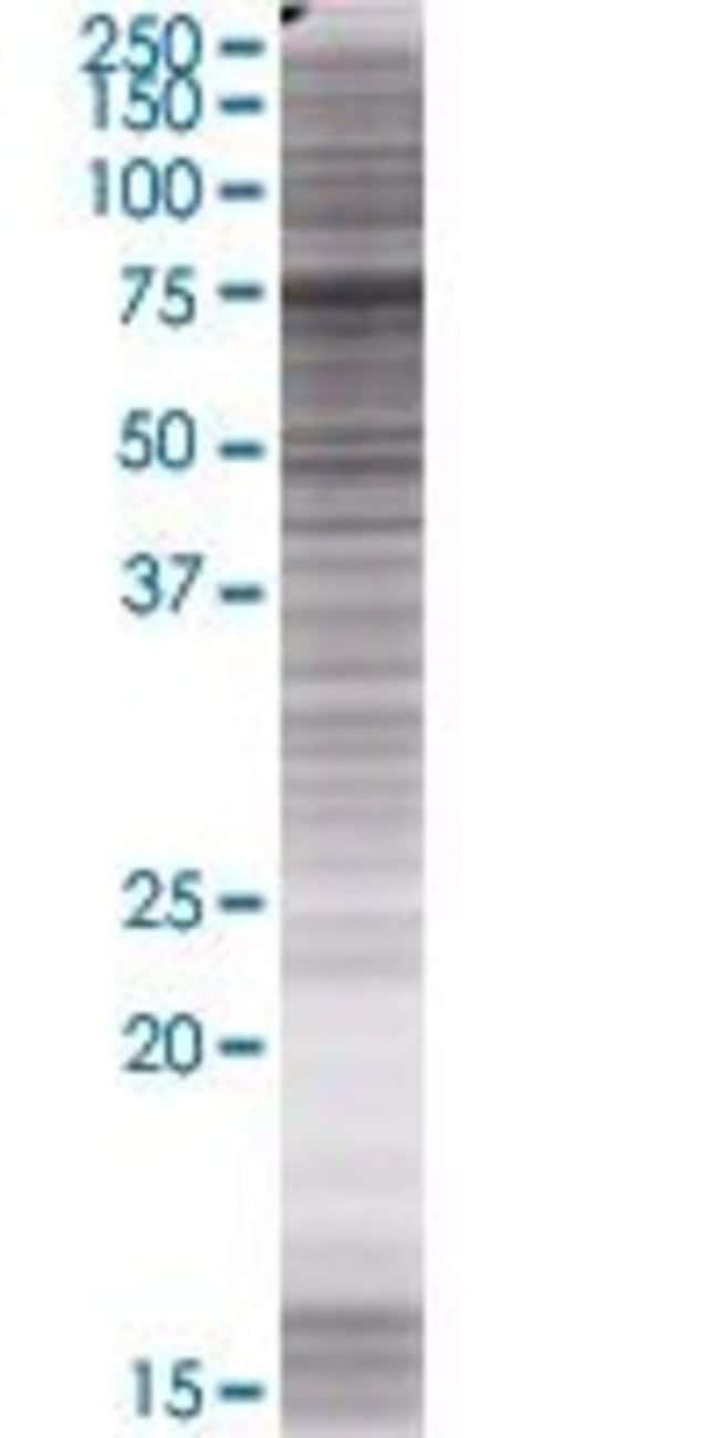 Abnova KIFC3 293T Cell Transient Overexpression Lysate (Denatured) (T01)