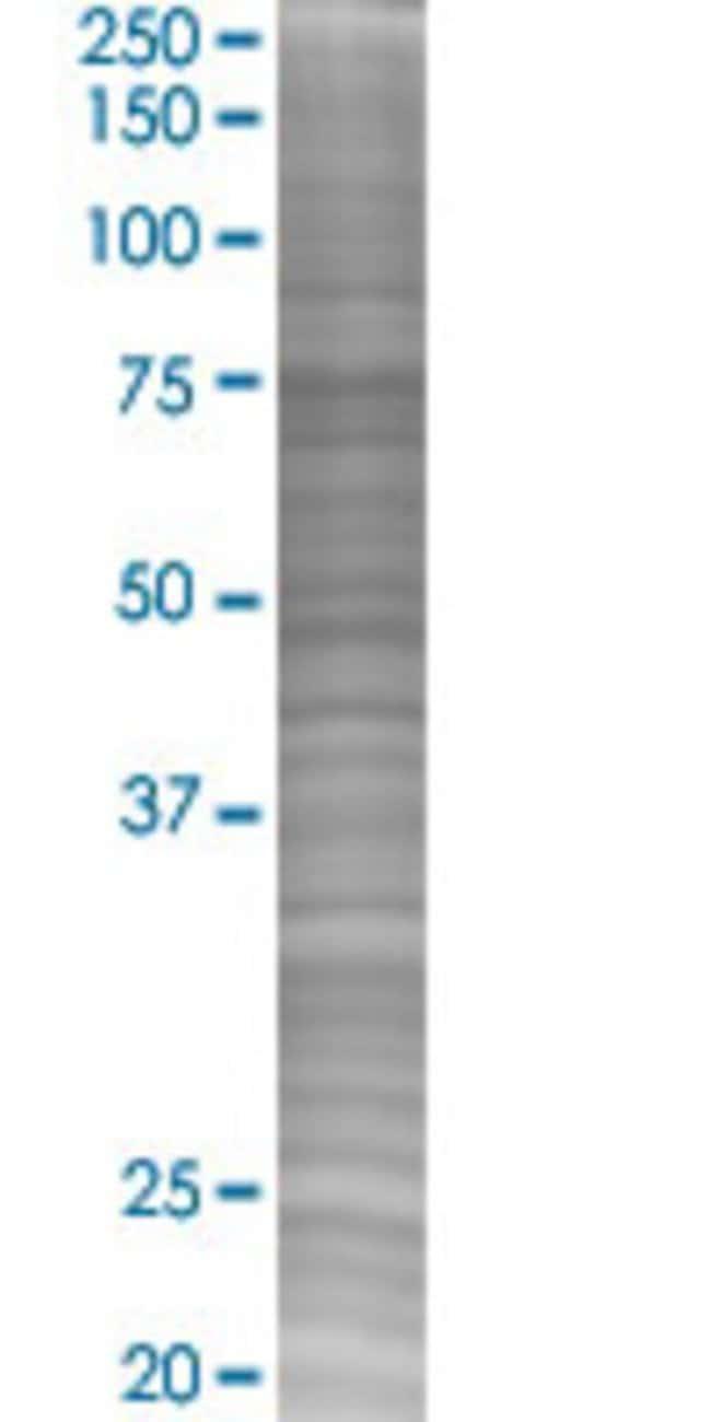 Abnova KIFC3 293T Cell Transient Overexpression Lysate (Denatured) (T02)