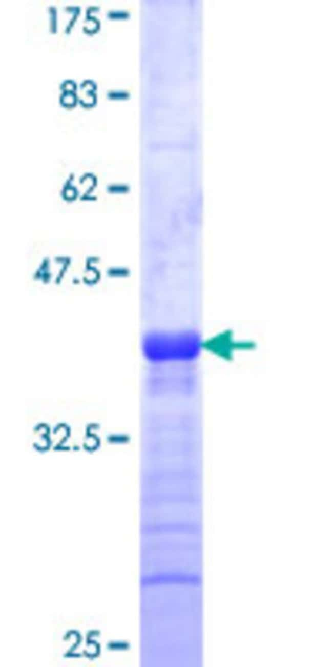 Abnova Human KISS1 Partial ORF (NP_002247, 46 a.a. - 145 a.a.) Recombinant