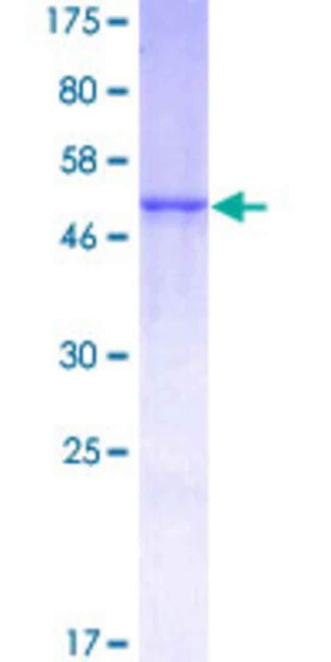 Abnova Human KLK1 Full-length ORF (NP_002248.1, 1 a.a. - 262 a.a.) Recombinant