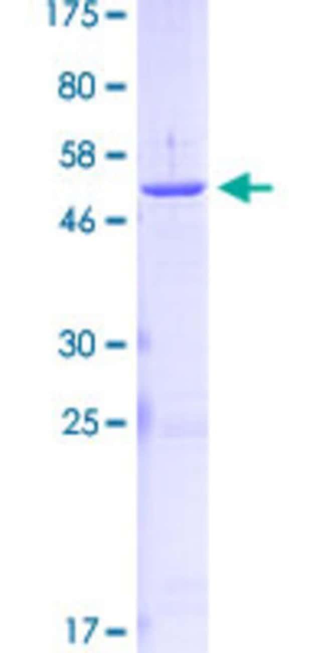 Abnova Human KLK2 Full-length ORF (AAH05196.1, 1 a.a. - 261 a.a.) Recombinant