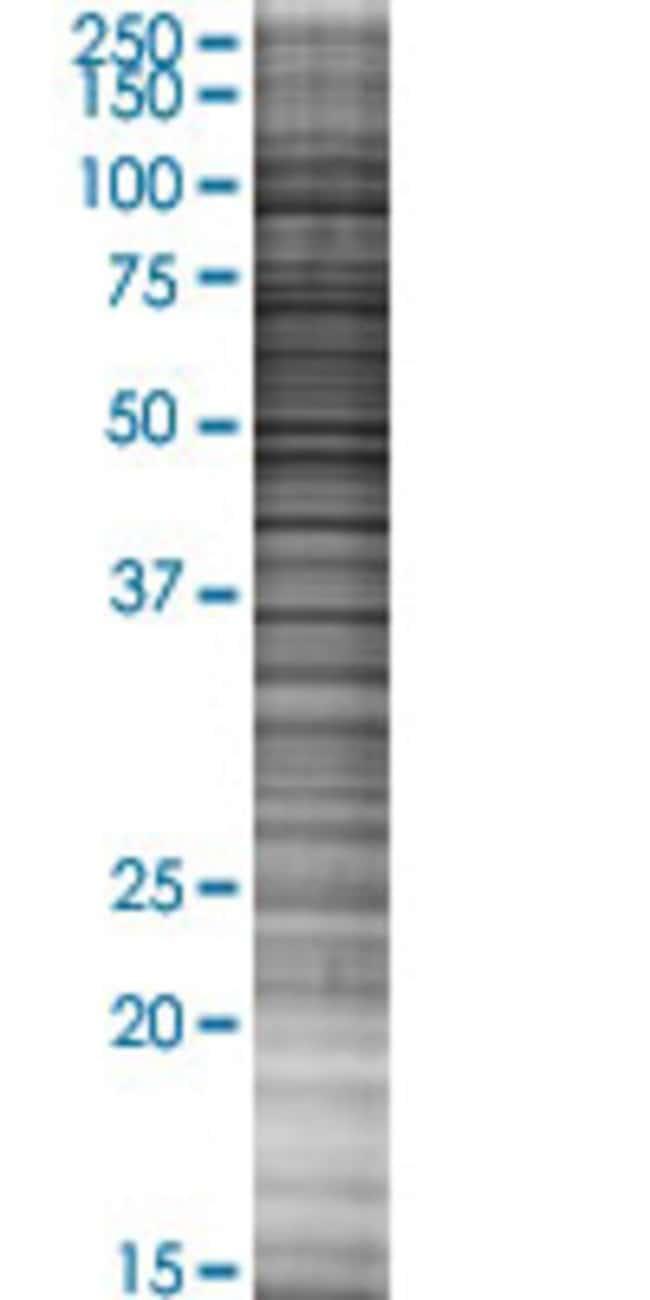 Abnova KLRC2 293T Cell Transient Overexpression Lysate (Denatured) 100µL:Life