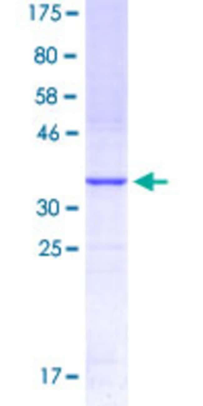 Abnova Human KLRD1 Partial ORF (NP_002253.1, 80 a.a. - 179 a.a.) Recombinant