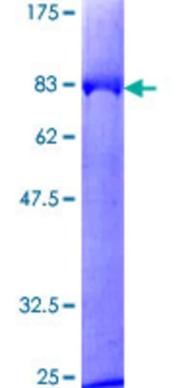 Abnova Human KNG1 Full-length ORF (NP_000884.1, 1 a.a. - 427 a.a.) Recombinant