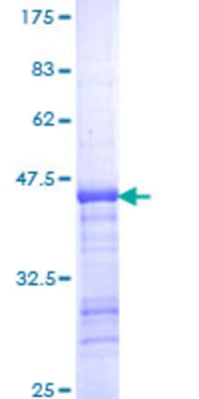 Abnova Human KIF11 Partial ORF (NP_004514, 947 a.a. - 1056 a.a.) Recombinant