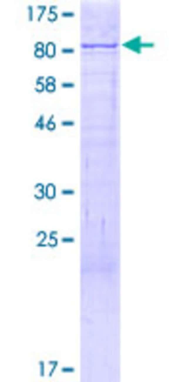Abnova Human KIFC1 Full-length ORF (NP_002254.1, 1 a.a. - 673 a.a.) Recombinant