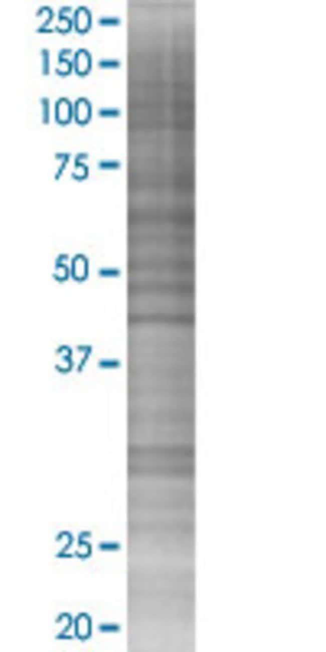 Abnova KPNA1 293T Cell Transient Overexpression Lysate 100µL:Life