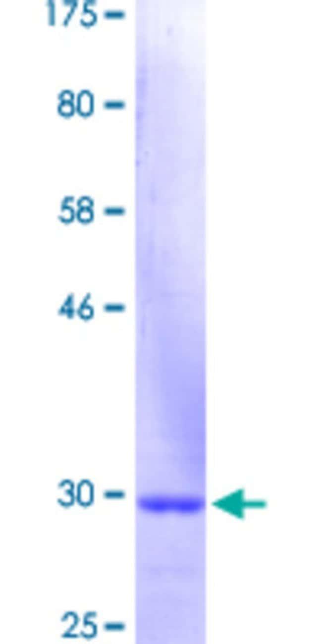 Abnova Human KRT3 Partial ORF (NP_476429.1, 232 a.a. - 289 a.a.) Recombinant