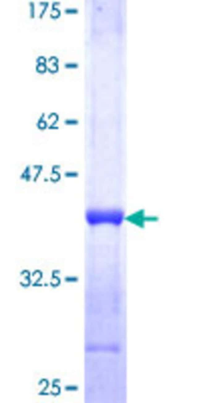Abnova™ Human KRT4 Partial ORF (NP_002263, 194 a.a. - 300 a.a.) Recombinant Protein with GST-tag at N-terminal 10μg Abnova™ Human KRT4 Partial ORF (NP_002263, 194 a.a. - 300 a.a.) Recombinant Protein with GST-tag at N-terminal
