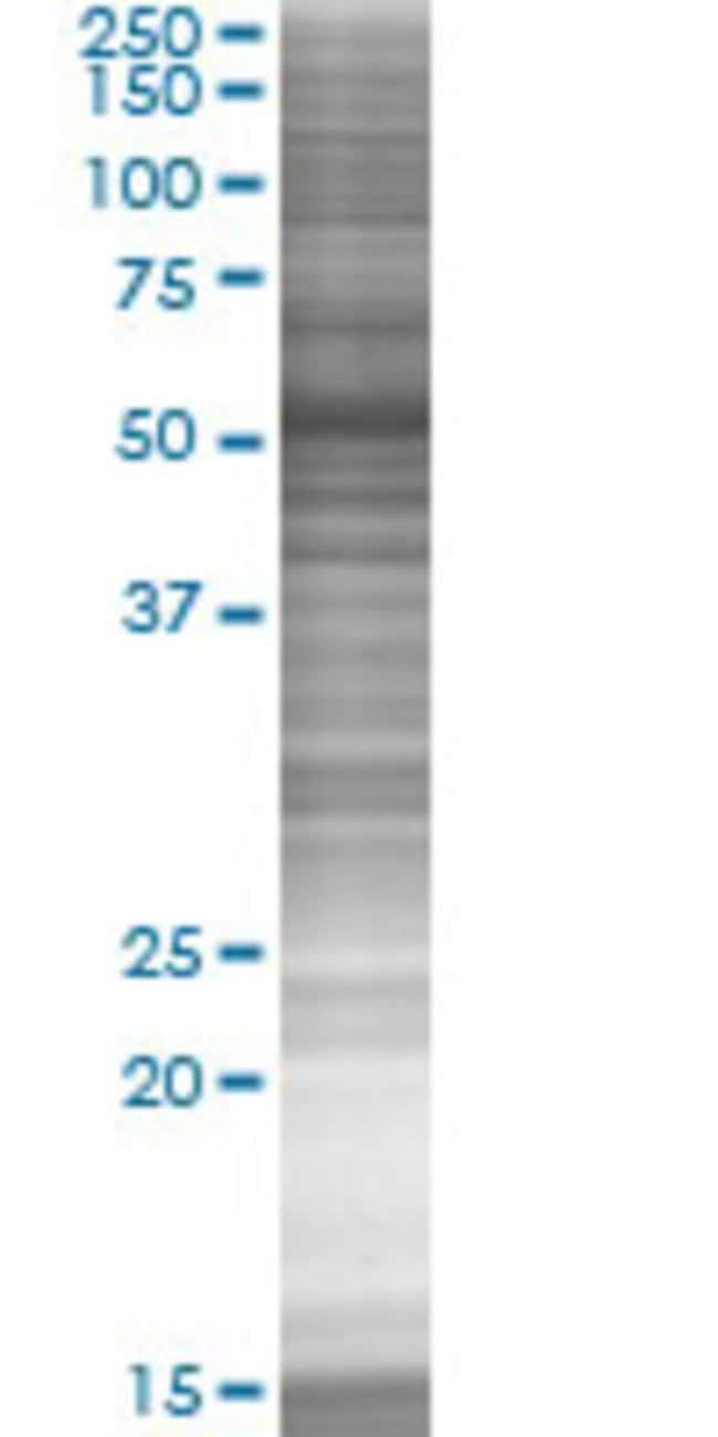 Abnova KRT5 293T Cell Transient Overexpression Lysate (Denatured) 100µL:Life