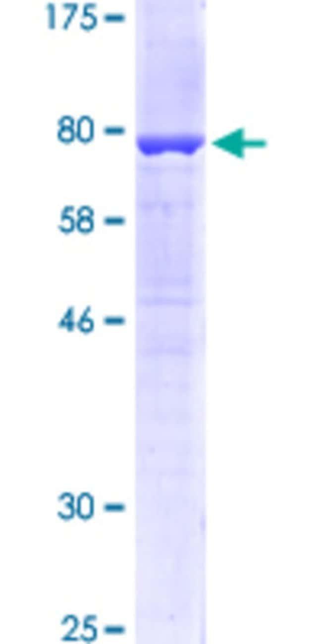 Abnova Human KRT6A Full-length ORF (NP_005545.1, 1 a.a. - 564 a.a.) Recombinant