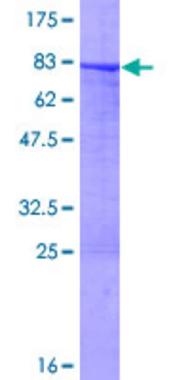 Abnova Human KRT7 Full-length ORF (AAH02700.1, 1 a.a. - 469 a.a.) Recombinant
