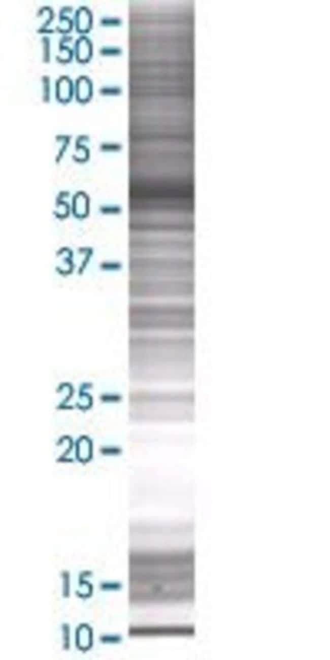 Abnova KRT7 293T Cell Transient Overexpression Lysate (Denatured) 100µL:Life