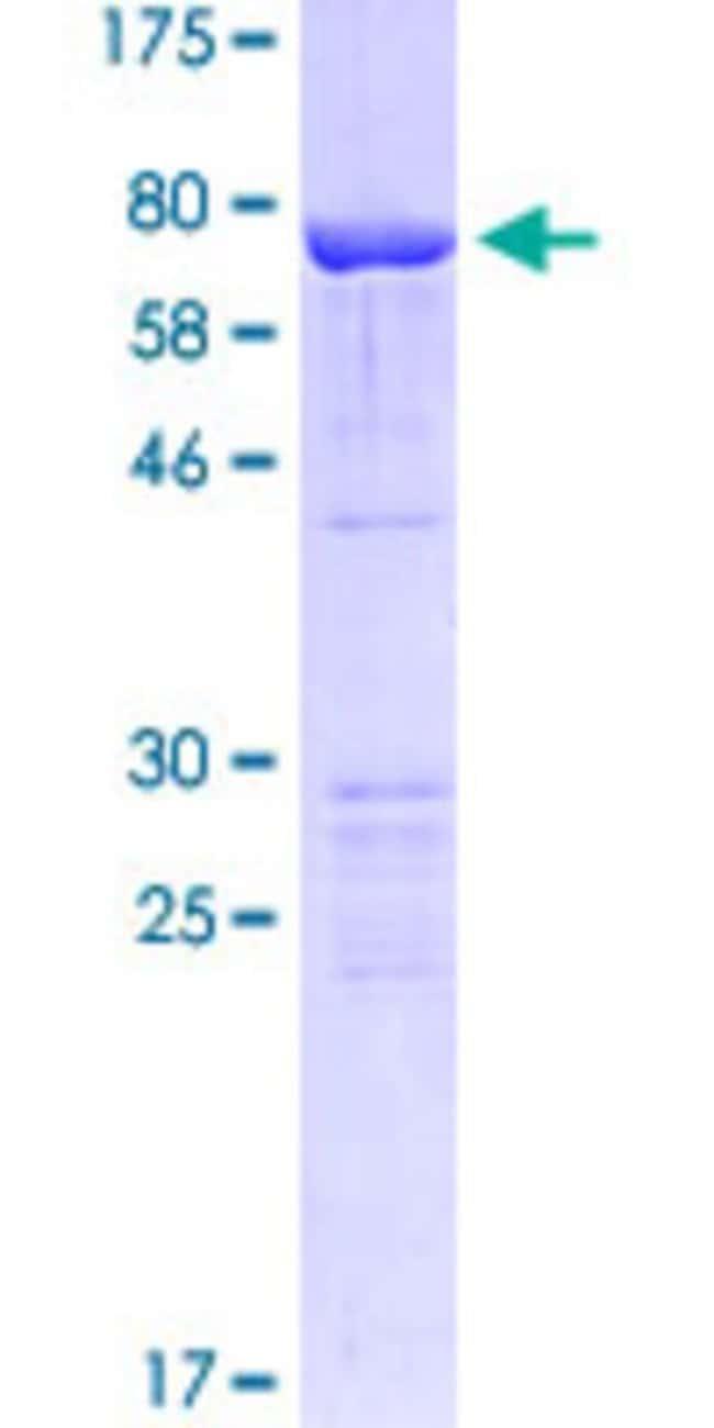 Abnova Human KRT15 Full-length ORF (AAH02641.1, 1 a.a. - 456 a.a.) Recombinant