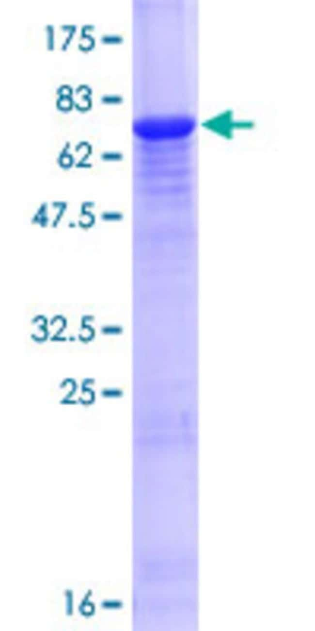 Abnova™Human KRT34 Full-length ORF (AAH41070.1, 1 a.a. - 436 a.a.) Recombinant Protein with GST-tag at N-terminal 10μg Abnova™Human KRT34 Full-length ORF (AAH41070.1, 1 a.a. - 436 a.a.) Recombinant Protein with GST-tag at N-terminal