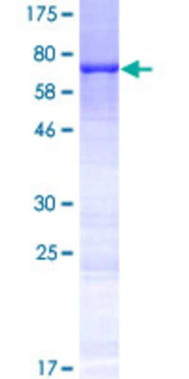 Abnova Human KRT35 Full-length ORF (AAI46509.1, 1 a.a. - 455 a.a.) Recombinant