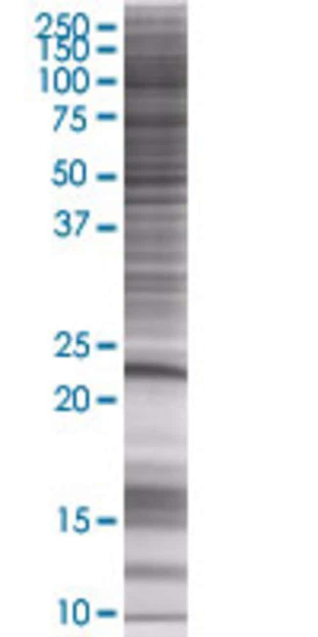Abnova KRT81 293T Cell Transient Overexpression Lysate (Denatured) (T01)