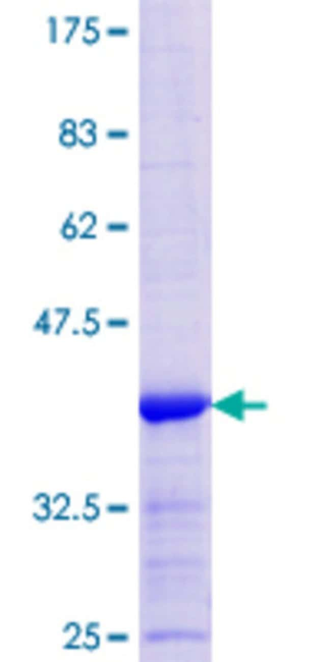 Abnova™Human LAD1 Partial ORF (NP_005549.2, 418 a.a. - 517 a.a.) Recombinant Protein with GST-tag at N-terminal 10μg Abnova™Human LAD1 Partial ORF (NP_005549.2, 418 a.a. - 517 a.a.) Recombinant Protein with GST-tag at N-terminal