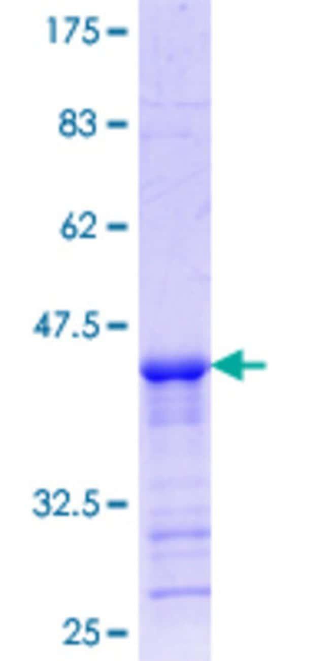 Abnova Human LAIR1 Partial ORF (NP_002278.1, 188 a.a. - 287 a.a.) Recombinant