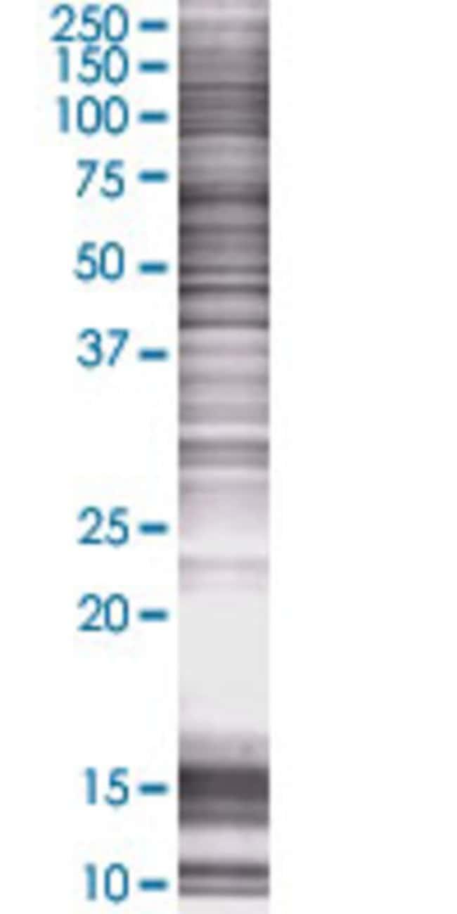 Abnova LAIR2 293T Cell Transient Overexpression Lysate (Denatured) 100µL:Life