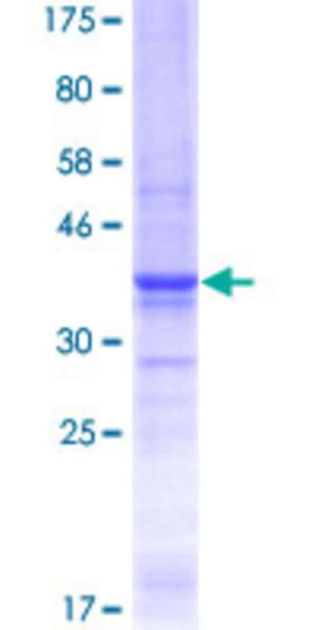Abnova Human LAMA5 Partial ORF (AAH03355.1, 1 a.a. - 100 a.a.) Recombinant