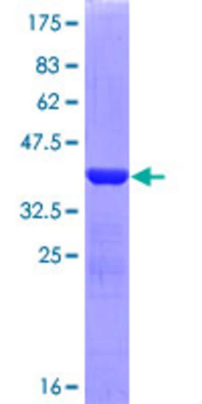 Abnova Human LAMB3 Partial ORF (NP_000219, 1064 a.a. - 1171 a.a.) Recombinant