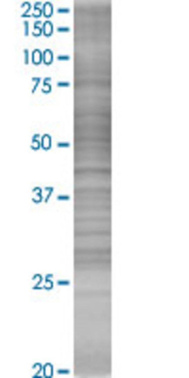 Abnova LCK 293T Cell Transient Overexpression Lysate (Denatured) 100µL:Life