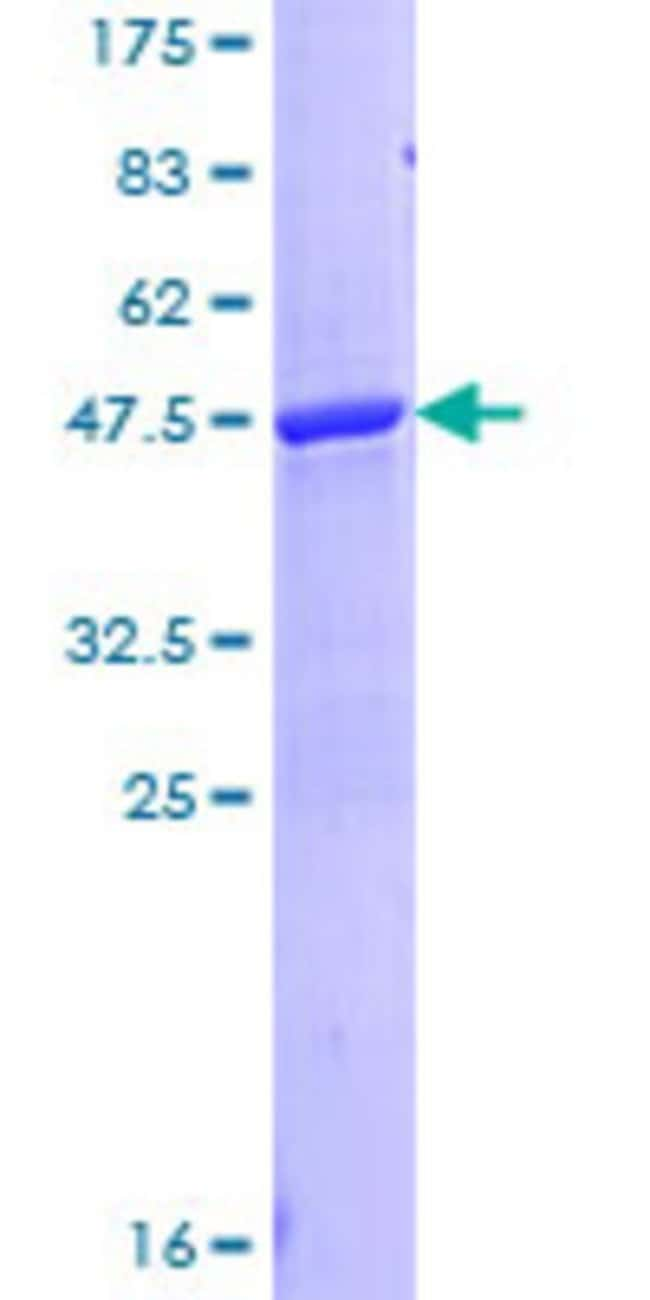 Abnova Human LCN1 Full-length ORF (NP_002288.1, 1 a.a. - 176 a.a.) Recombinant